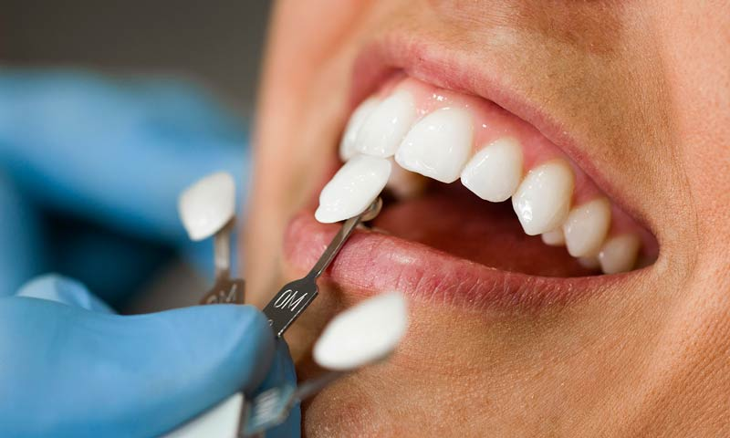 Precio por un implante dental en Madrid