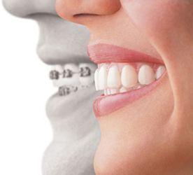 Periodoncista en Madrid